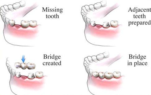 Waterloo Dentist - Erbsville Dental - Dental bridges