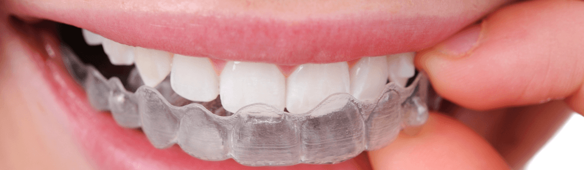 waterloo invisalign