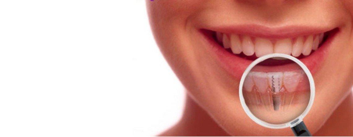 Waterloo Dentist - Erbsville Dental - Dental implant