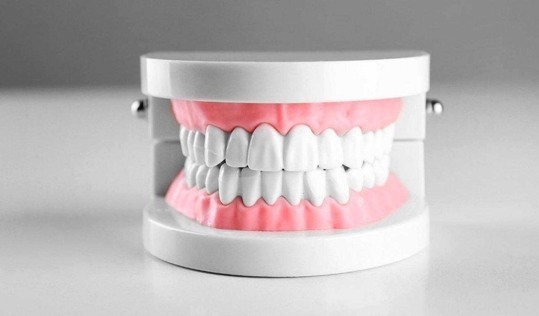 Waterloo Dentist - Erbsville Dental - Model teeth