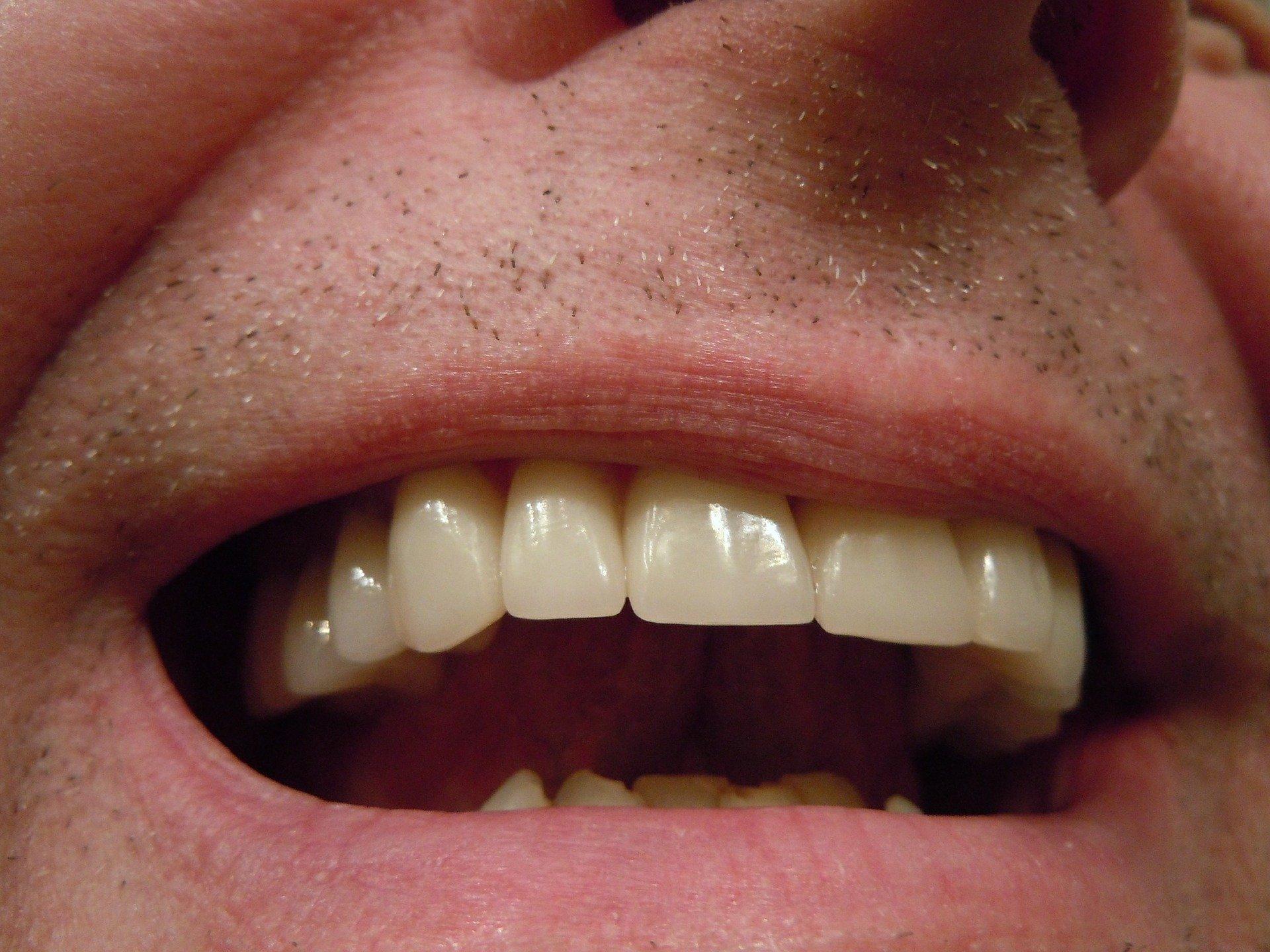 dentistry crowns in waterloo - waterloo dentist - erbsville dental