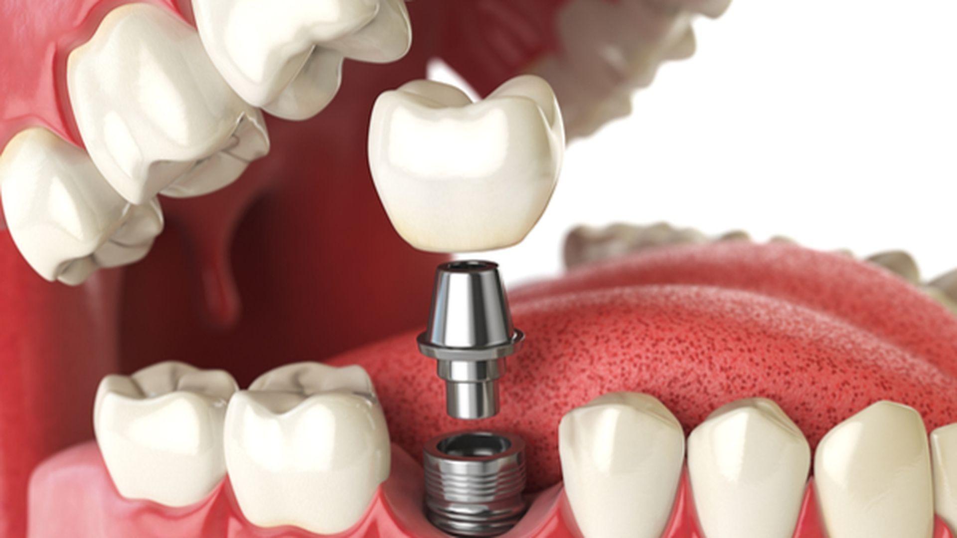 dental implant treatments waterloo - Dr. Stephen Mathews - Waterloo Dentist