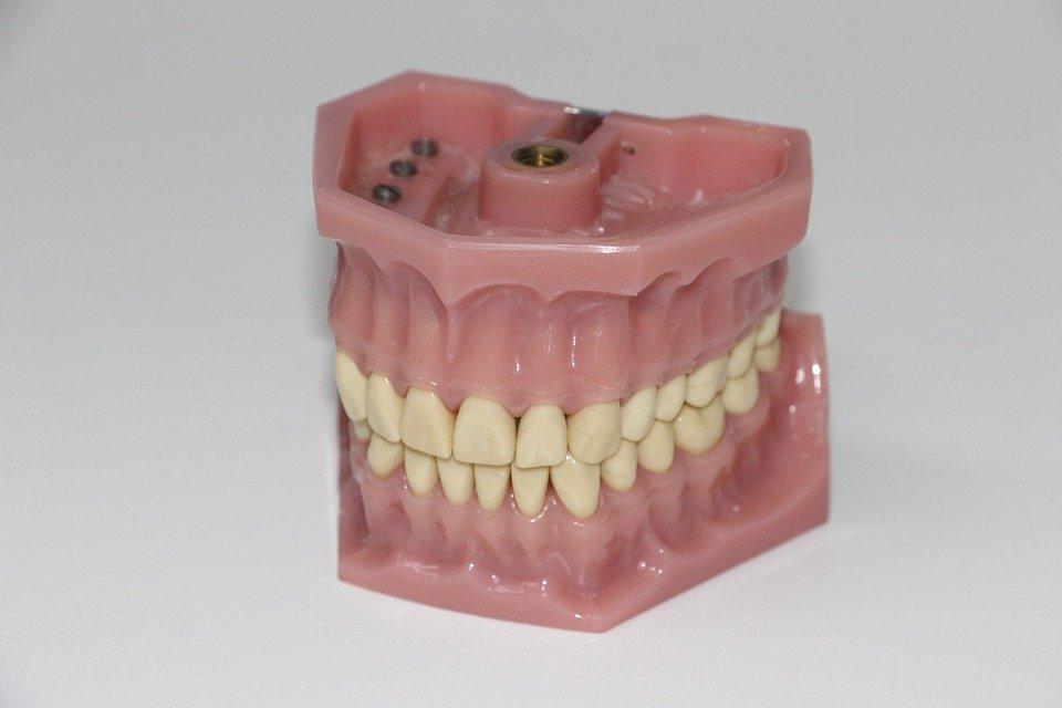 denture care waterloo - waterloo city waterloo dentist - Erbsville Dental