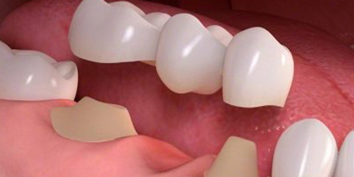 How Do Patients Know The Dental Crowns Price In Waterloo
